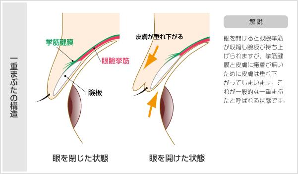 目を開けると眼瞼挙筋が収縮し瞼板が持ち上げられますが、挙筋腱膜と皮膚に癒着がないため皮膚が垂れ下がってしまいます。これが一般的に一重まぶたと呼ばれる状態です。