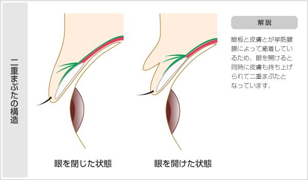 瞼板と皮膚とが挙筋腱膜を介して癒着しているため、目を開けると同時に皮膚も持ち上げられて二重まぶたを作ってくれるのです。