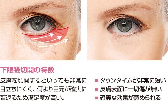 下眼瞼切開の特徴 皮膚を切開するといっても非常に目立ちにくく、何より目元が確実に若返るため満足度が高い。・ダウンタイムが非常に短い・皮膚表面に一切傷が無い・確実な効果が認められる (下眼瞼切開の実際)